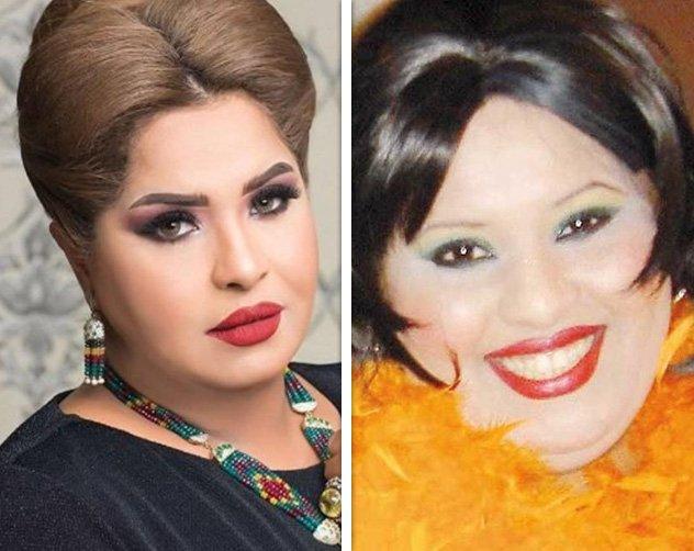 صور النجمات الخليجيات قبل وبعد عمليات التجميل